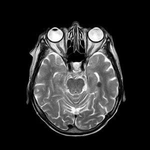 examen resonancia magnetica tac de cerebro